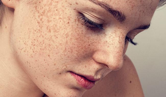 """Bí quyết ngăn ngừa tăng sắc tố da vào ngày hè, chị em nên lưu tâm để """"phòng hơn chữa"""""""