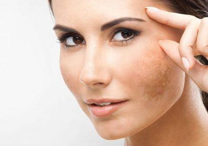 Nám da mặt lâu năm có cách nào chữa tận gốc được không?